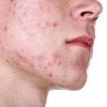 acne vale