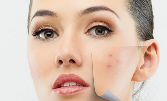 cicatriz_acne