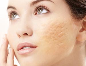 ciactriz acne