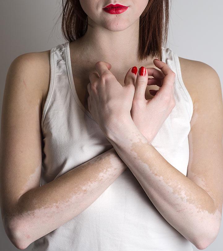 Vitiligo 12